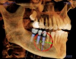 Advanced Technology -3D Cone Beam Imaging