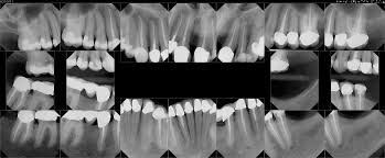 dental xray exams colorado springs