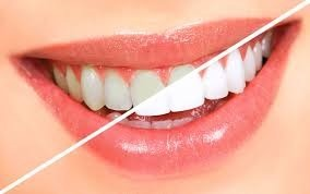 Teeth Whitening with Esthetic Family Dentistry