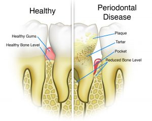 periodontal dentist colorado springs
