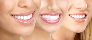 cosmetic-dentistry Esthetic Family Dentistry, Colorado Springs