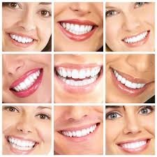 smile makeover colorado springs