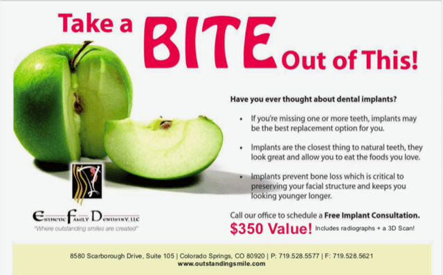 dental implant deals